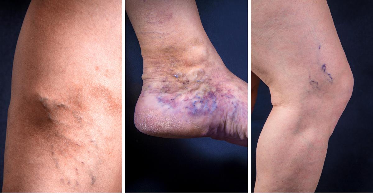 Esclerosis de varices con microespuma, todo lo que necesitas saber