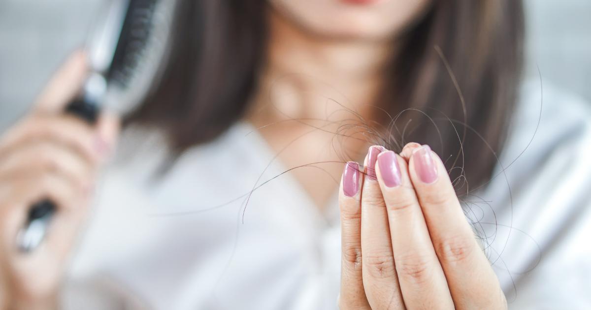 Alopecia femenina, todo lo que necesitas saber